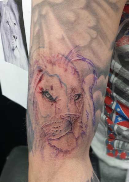 tattoo laser treatment